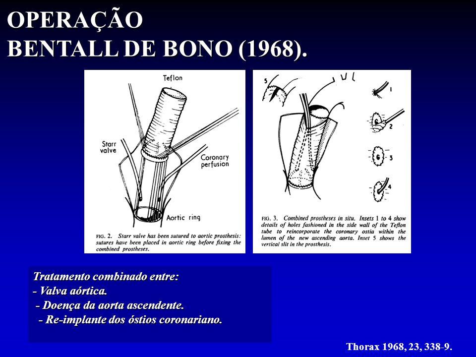 OPERAÇÃO BENTALL DE BONO (1968). Tratamento combinado entre: