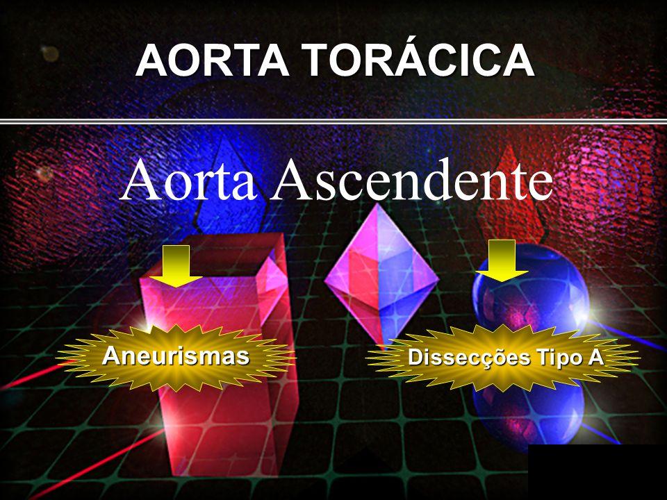 AORTA TORÁCICA Aorta Ascendente Aneurismas Dissecções Tipo A