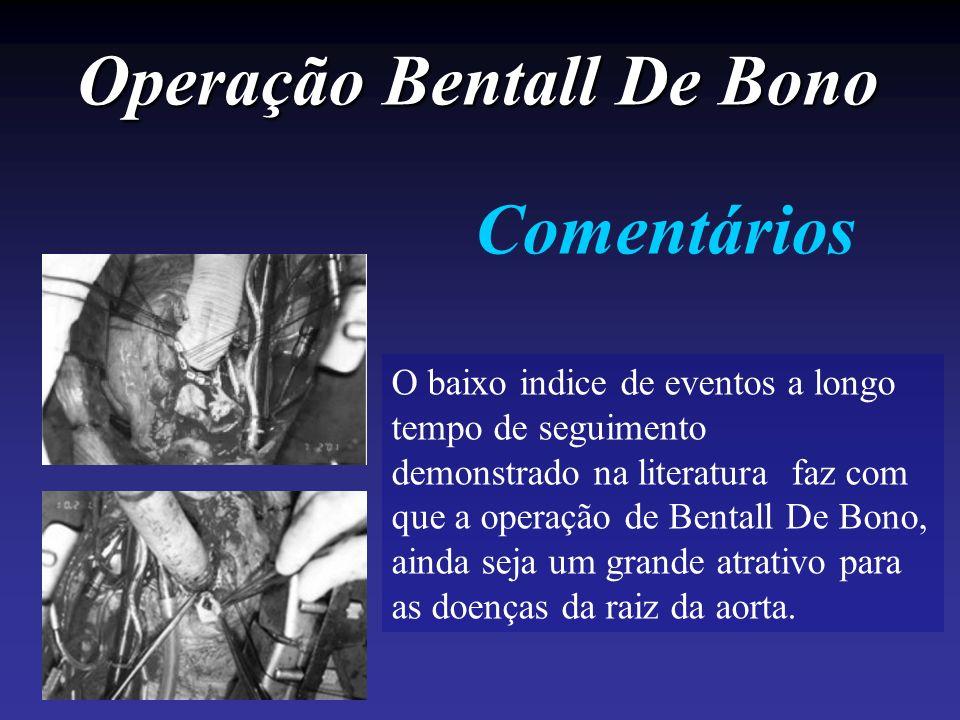 Operação Bentall De Bono