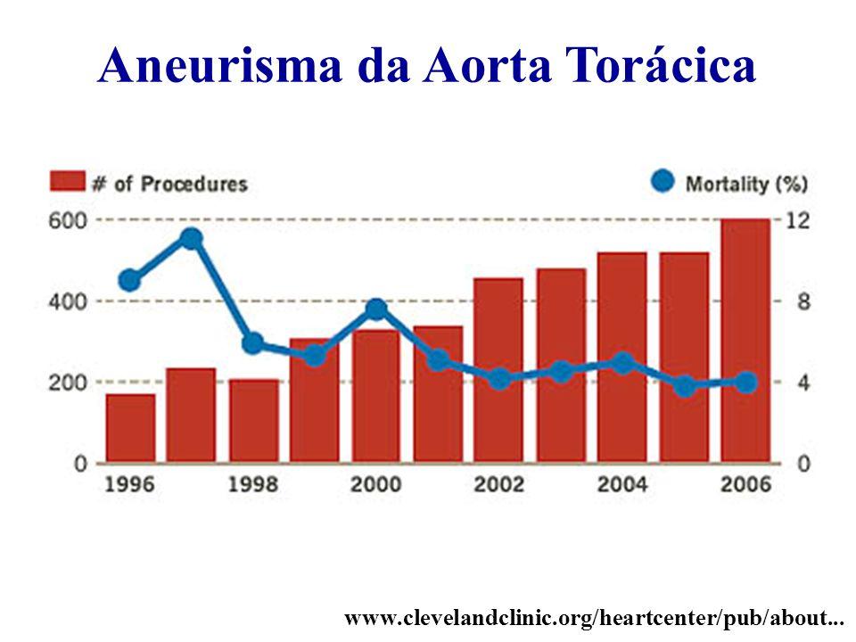 Aneurisma da Aorta Torácica