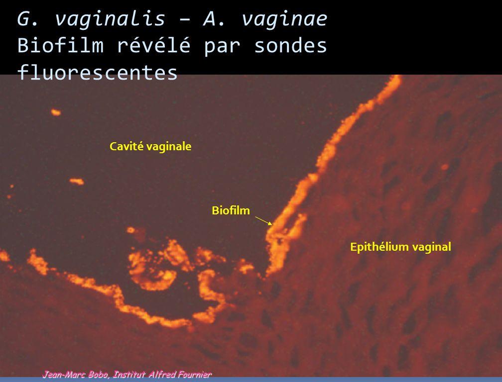Biofilm révélé par sondes fluorescentes