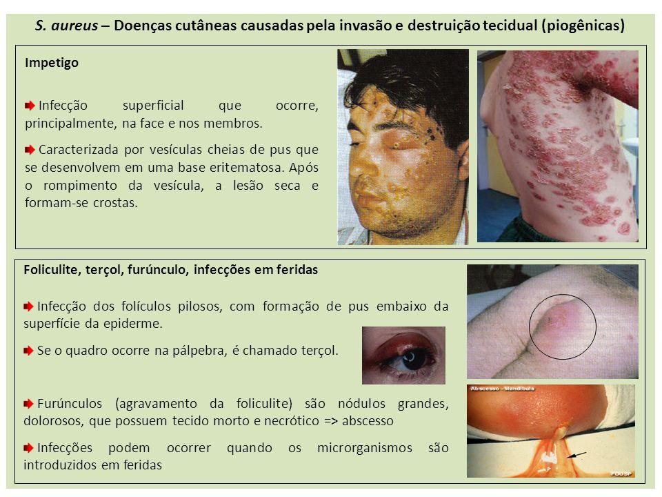 S. aureus – Doenças cutâneas causadas pela invasão e destruição tecidual (piogênicas)