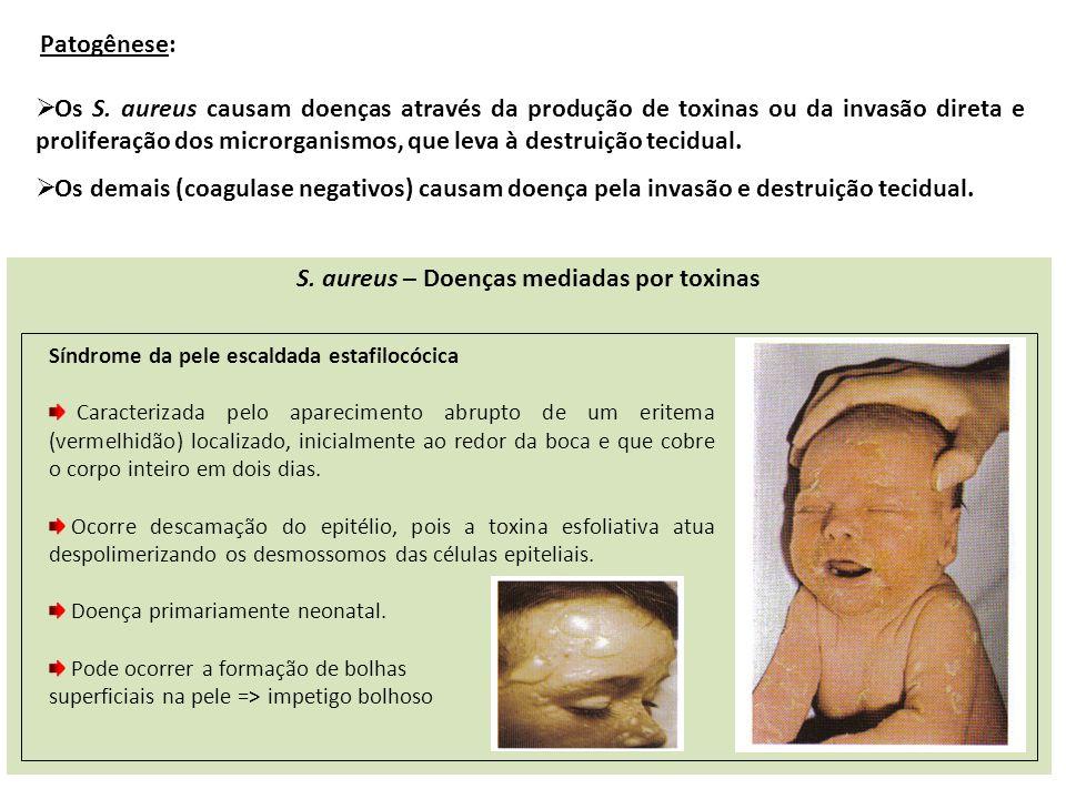 S. aureus – Doenças mediadas por toxinas