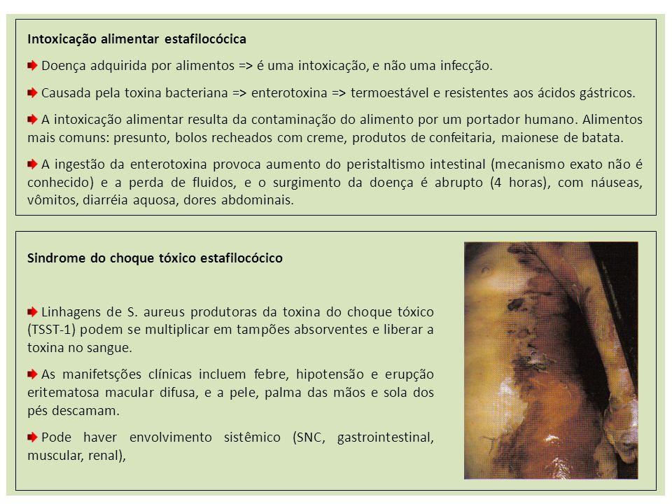 Intoxicação alimentar estafilocócica