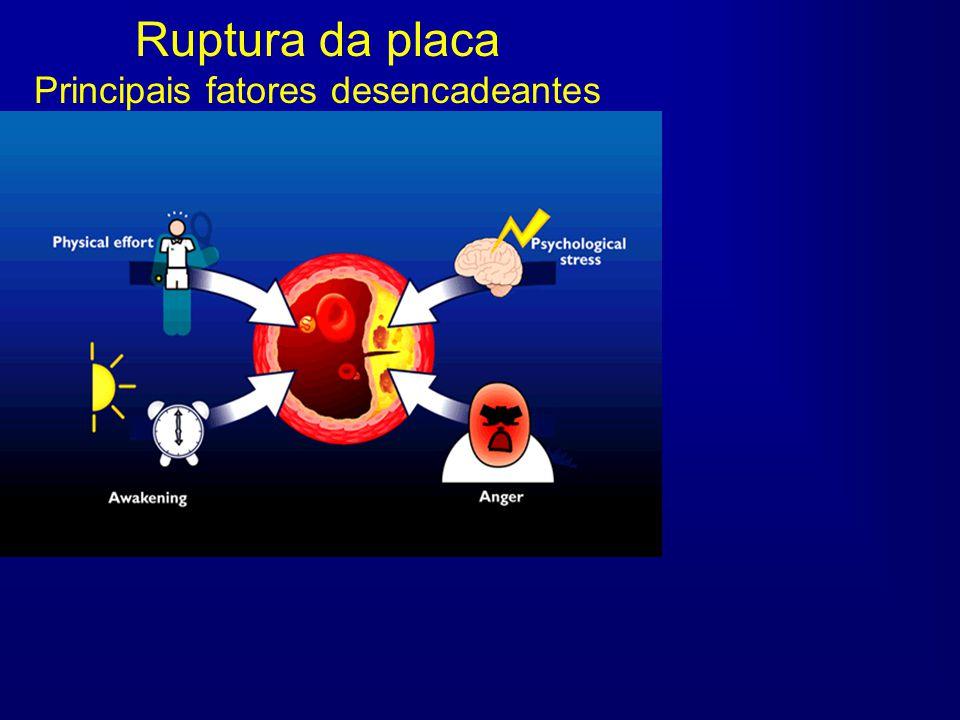 Ruptura da placa Principais fatores desencadeantes