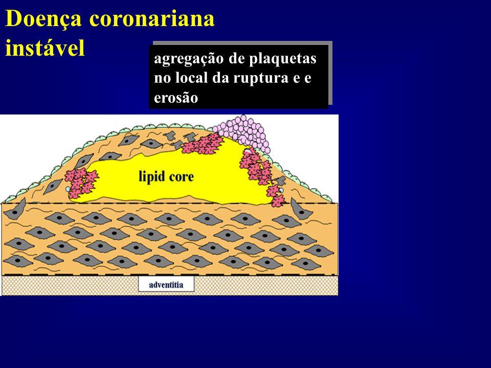 Doença coronariana instável