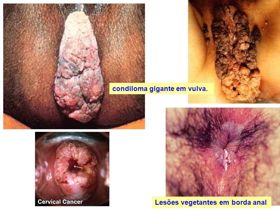 condiloma gigante em vulva.