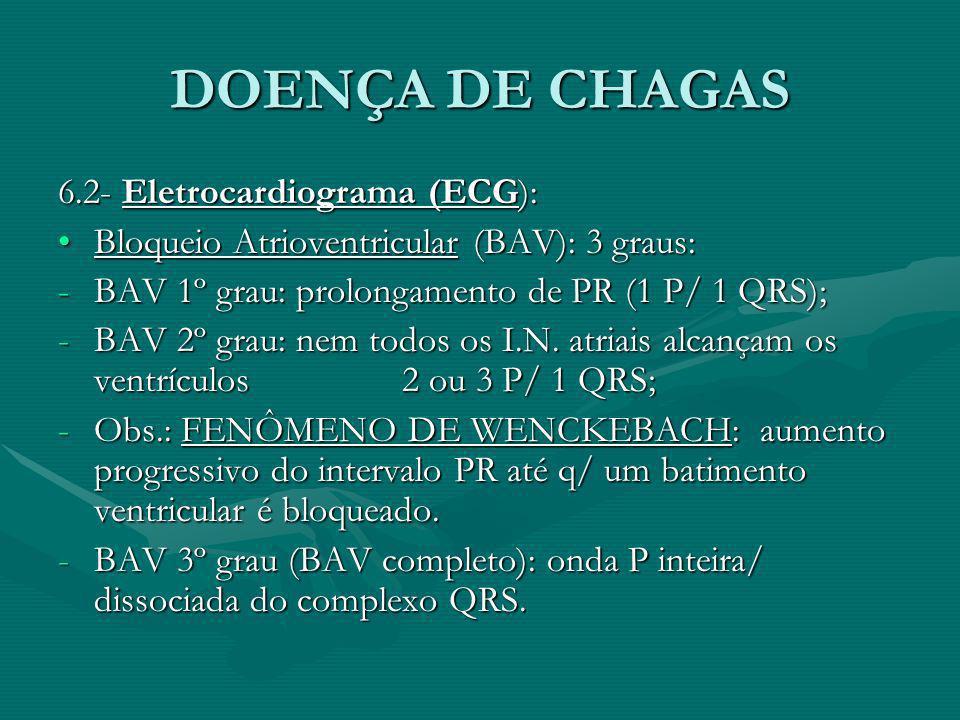 DOENÇA DE CHAGAS 6.2- Eletrocardiograma (ECG):