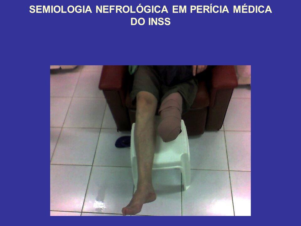 SEMIOLOGIA NEFROLÓGICA EM PERÍCIA MÉDICA DO INSS
