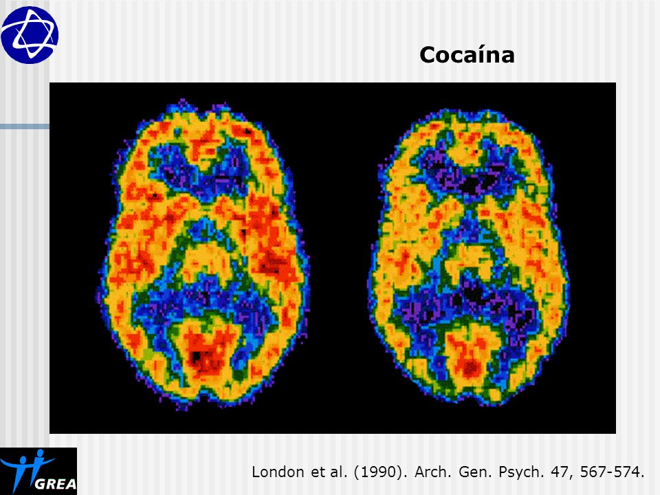 Cocaína London et al. (1990). Arch. Gen. Psych. 47, 567-574.