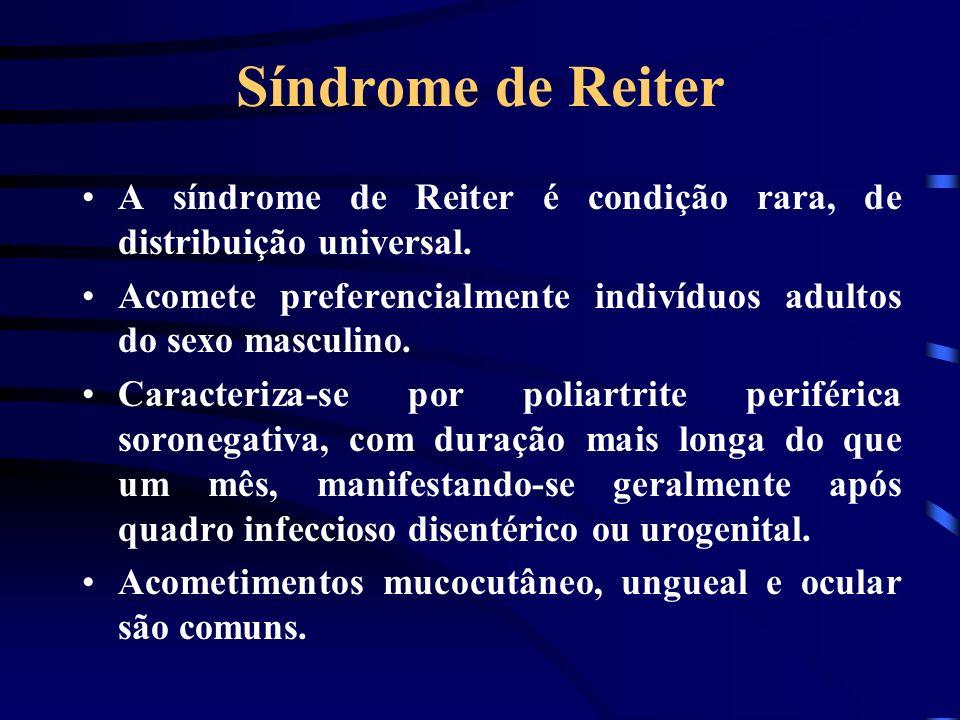 Síndrome de Reiter A síndrome de Reiter é condição rara, de distribuição universal. Acomete preferencialmente indivíduos adultos do sexo masculino.