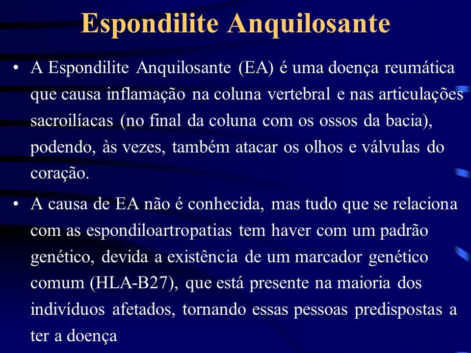 Espondilite Anquilosante
