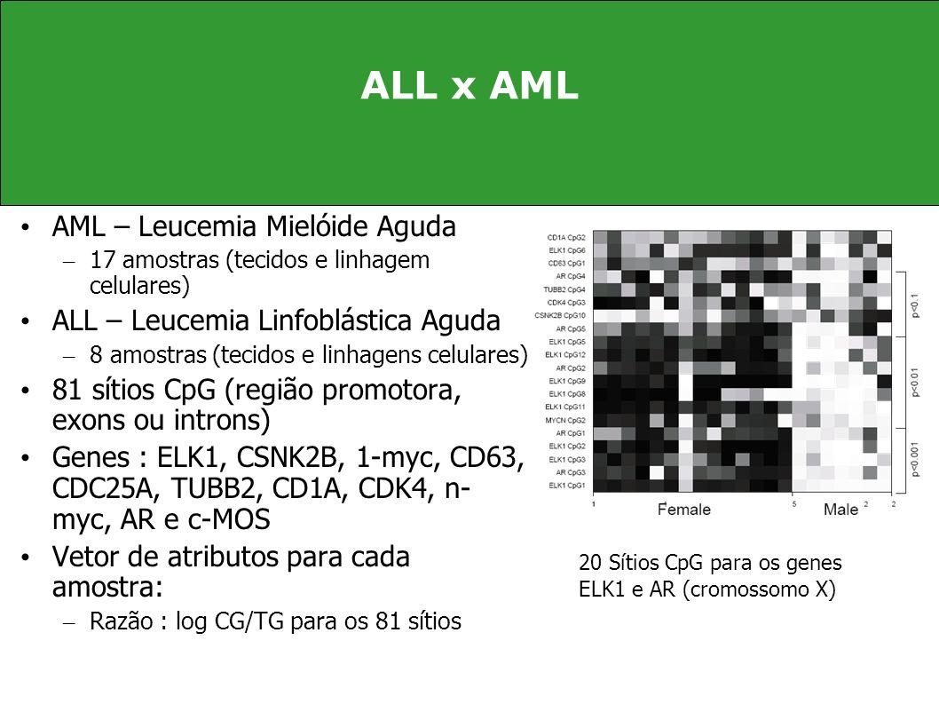 ALL x AML AML – Leucemia Mielóide Aguda