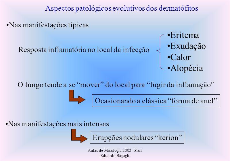 Eritema Exudação Calor Alopécia