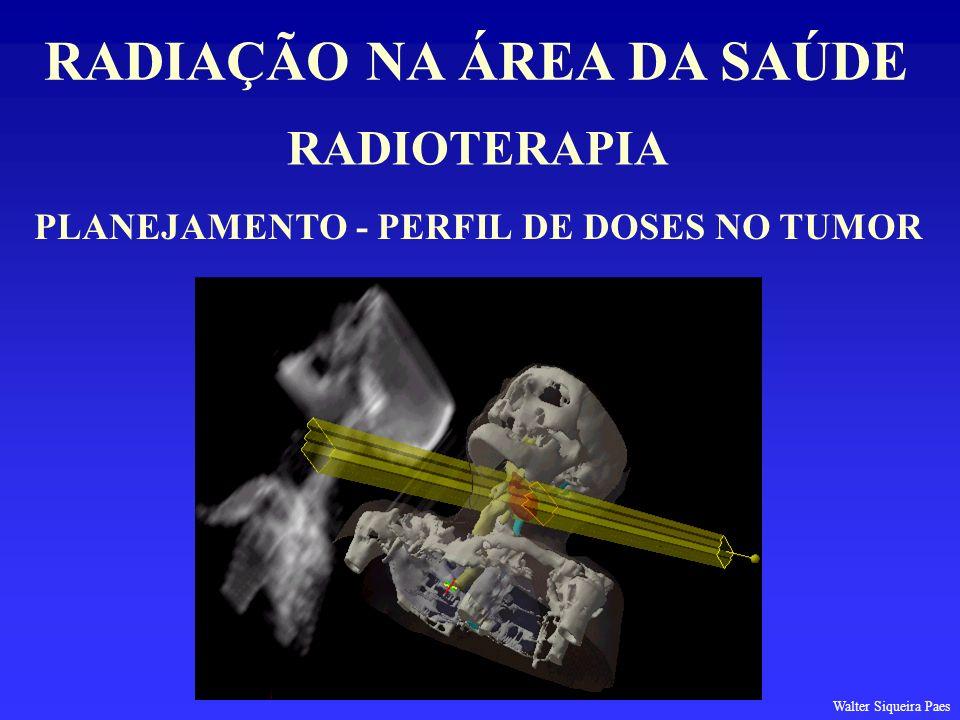RADIAÇÃO NA ÁREA DA SAÚDE PLANEJAMENTO - PERFIL DE DOSES NO TUMOR