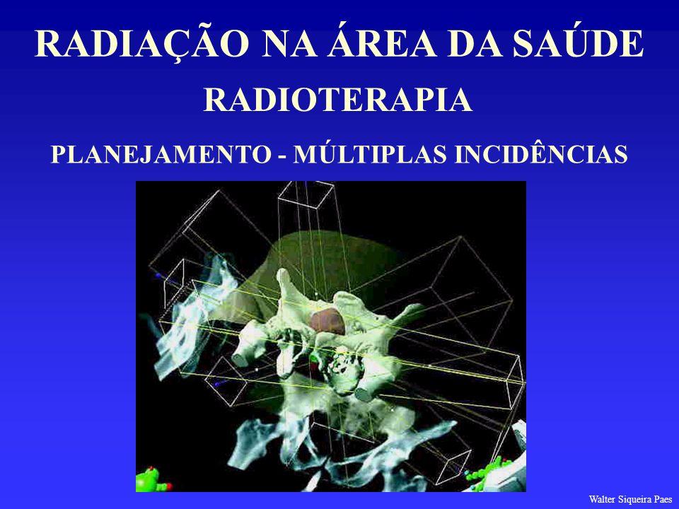 RADIAÇÃO NA ÁREA DA SAÚDE PLANEJAMENTO - MÚLTIPLAS INCIDÊNCIAS