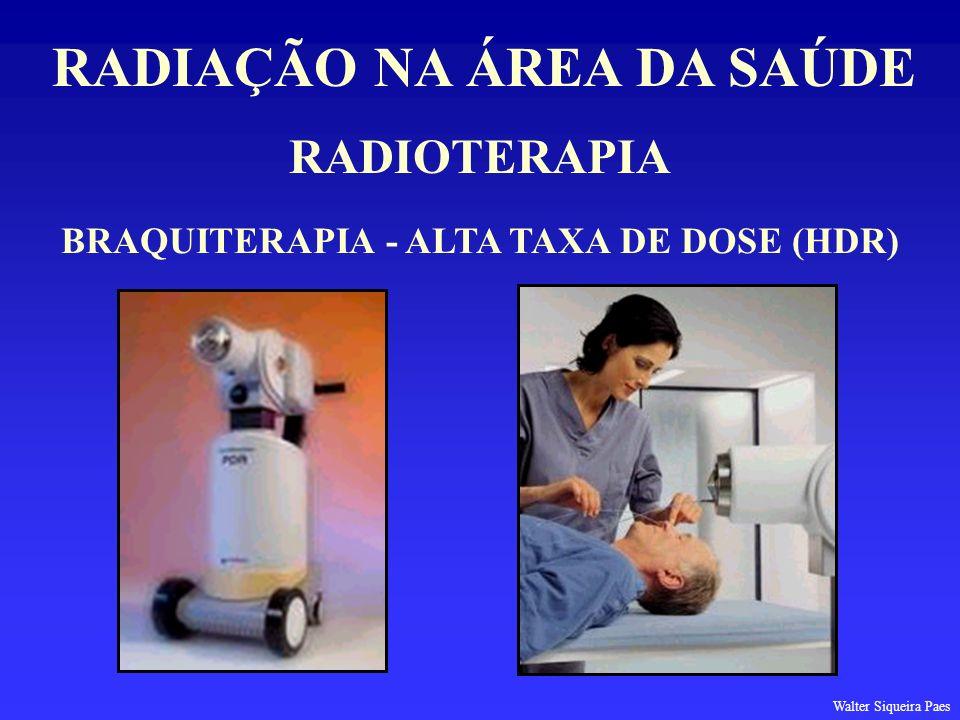 RADIAÇÃO NA ÁREA DA SAÚDE BRAQUITERAPIA - ALTA TAXA DE DOSE (HDR)