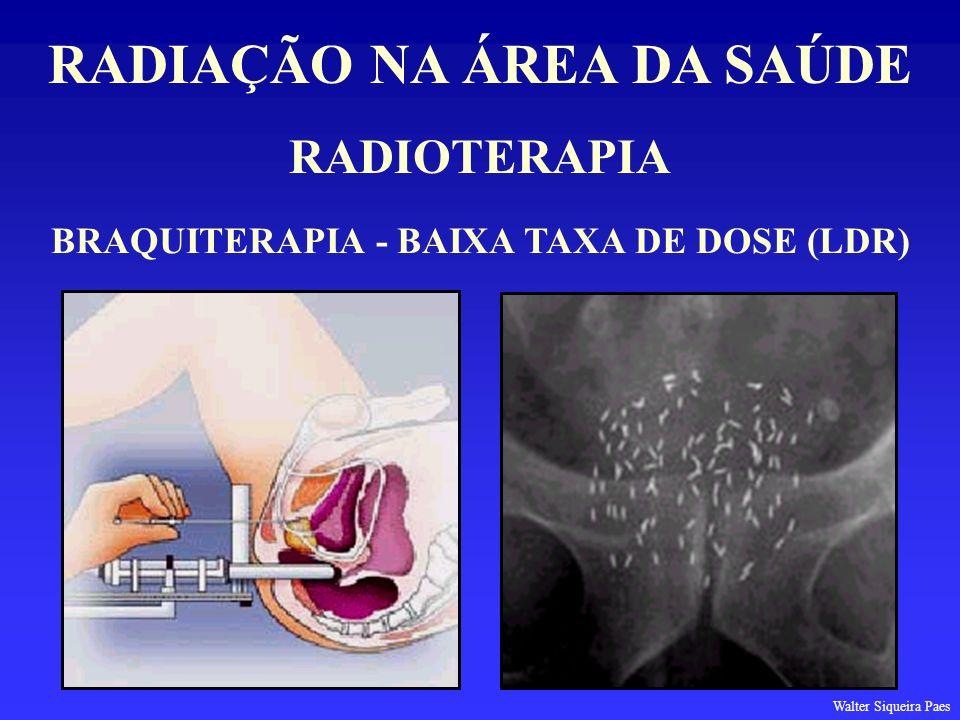 RADIAÇÃO NA ÁREA DA SAÚDE BRAQUITERAPIA - BAIXA TAXA DE DOSE (LDR)
