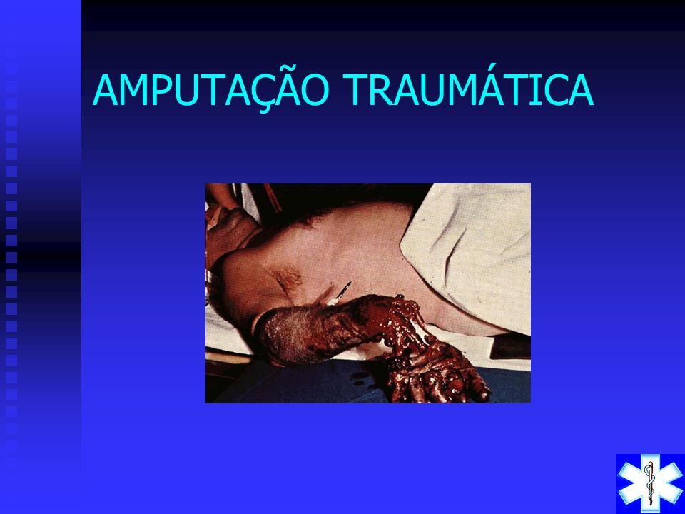 AMPUTAÇÃO TRAUMÁTICA