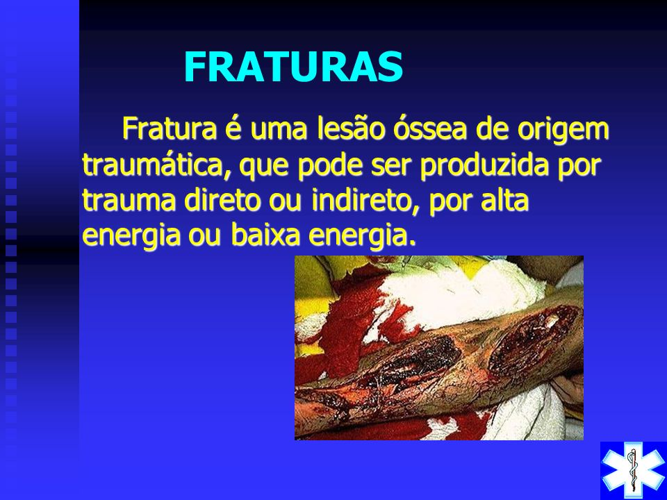 FRATURAS Fratura é uma lesão óssea de origem traumática, que pode ser produzida por trauma direto ou indireto, por alta energia ou baixa energia.