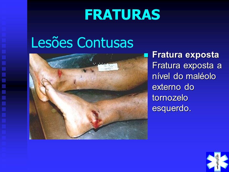 FRATURAS Lesões Contusas