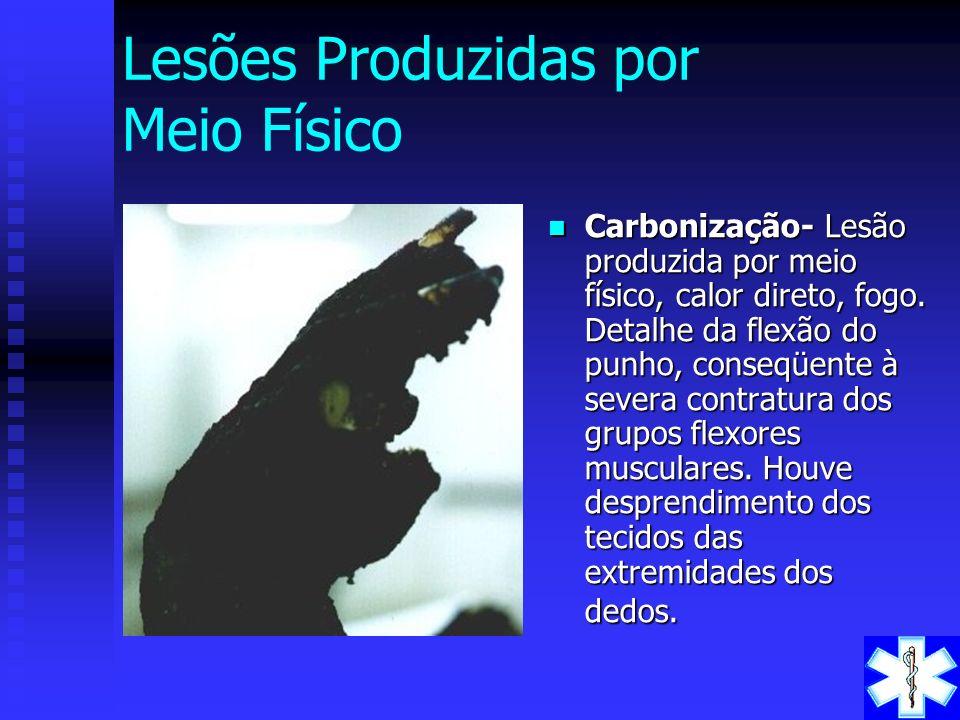 Lesões Produzidas por Meio Físico
