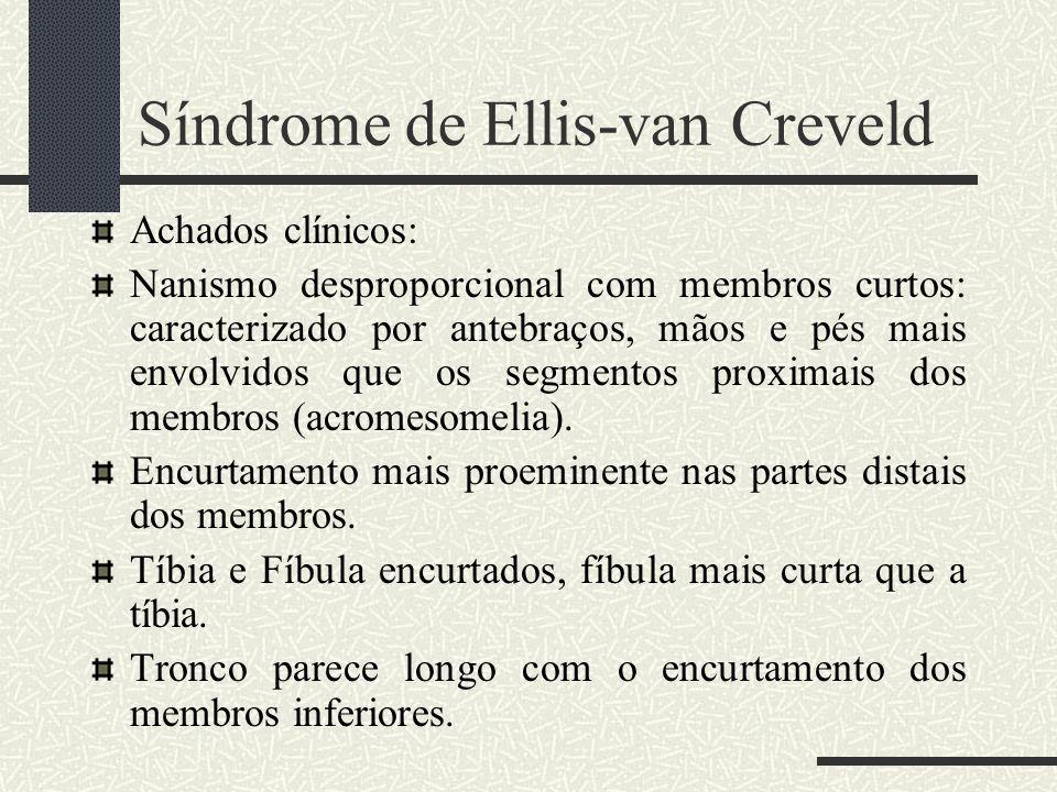 Síndrome de Ellis-van Creveld