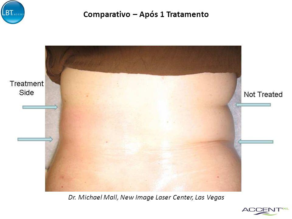 Comparativo – Após 1 Tratamento