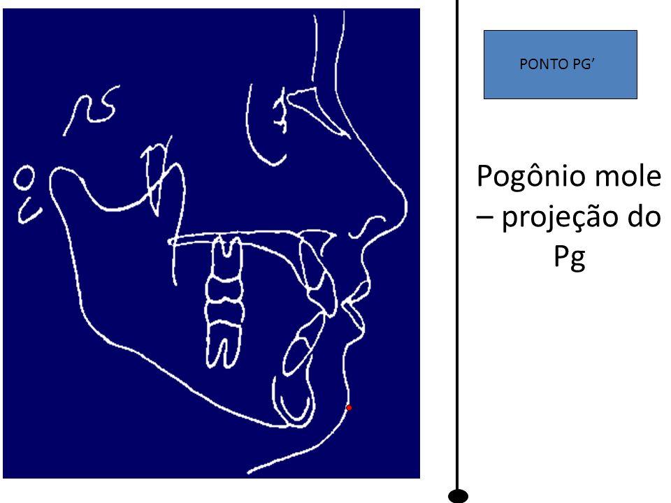 Pogônio mole – projeção do Pg