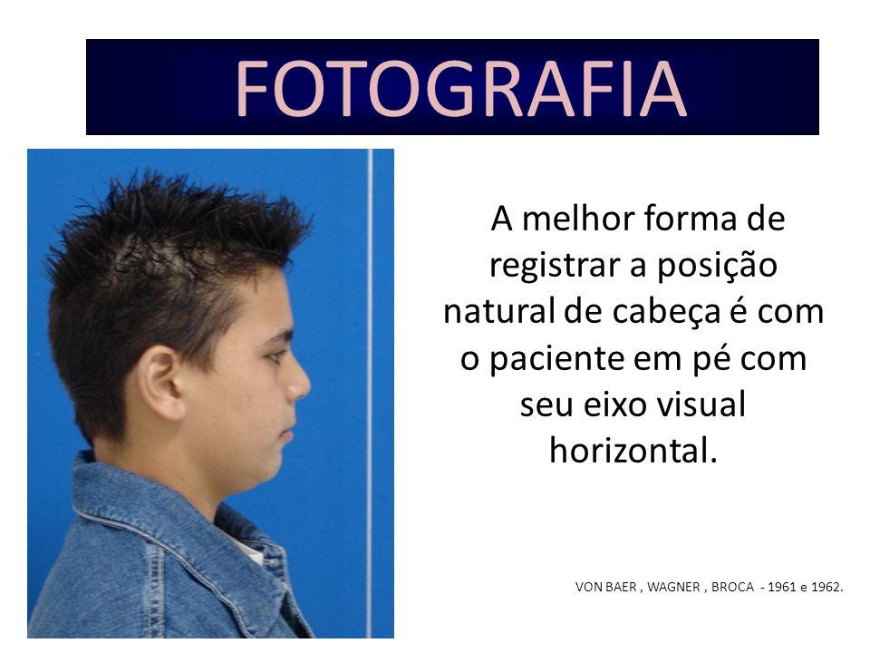 FOTOGRAFIA A melhor forma de registrar a posição natural de cabeça é com o paciente em pé com seu eixo visual horizontal.