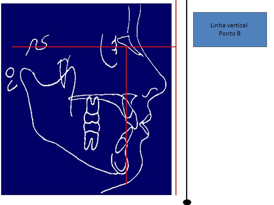 Linha vertical Ponto B