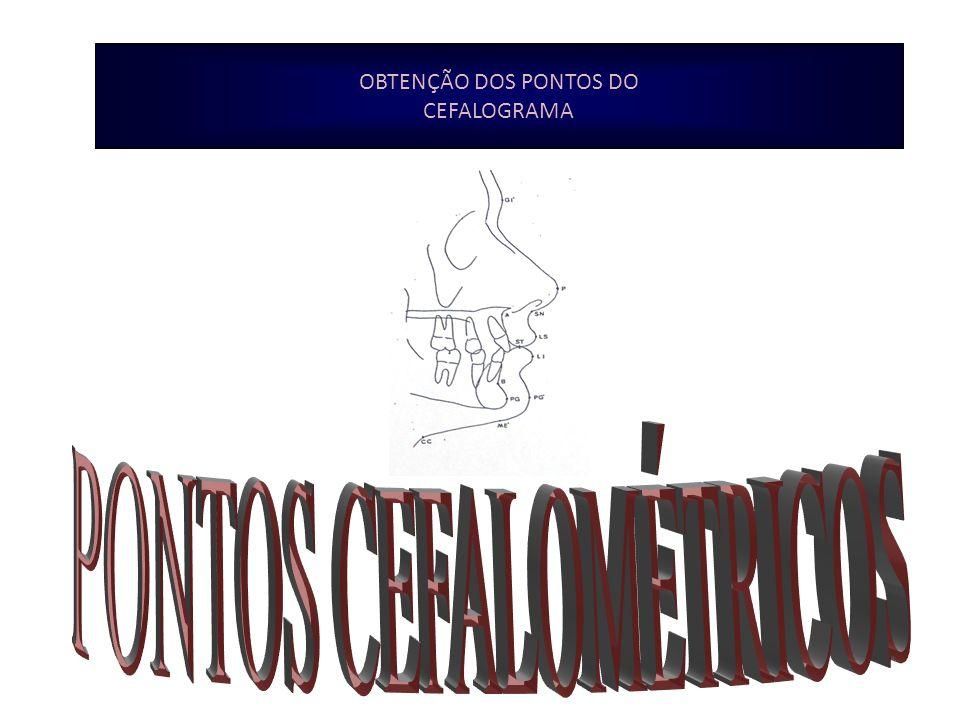 PONTOS CEFALOMÉTRICOS