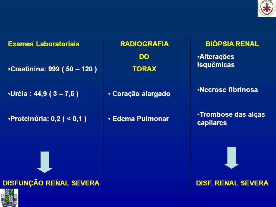 Exames LaboratoriaisCreatinina: 999 ( 50 – 120 ) Uréia : 44,9 ( 3 – 7,5 ) Proteinúria: 0,2 ( < 0,1 )