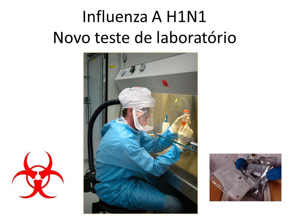 Influenza A H1N1 Novo teste de laboratório