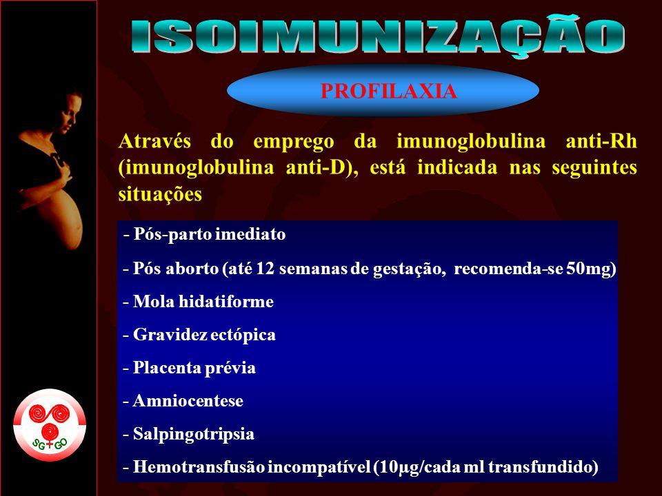 ISOIMUNIZAÇÃO PROFILAXIA