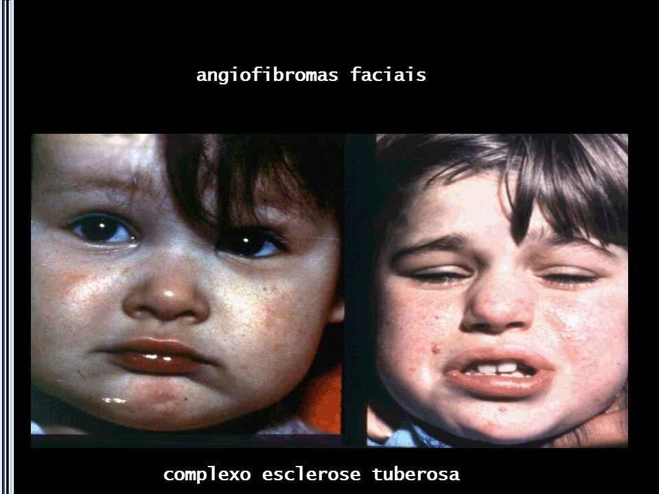angiofibromas faciais
