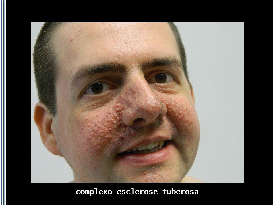 complexo esclerose tuberosa