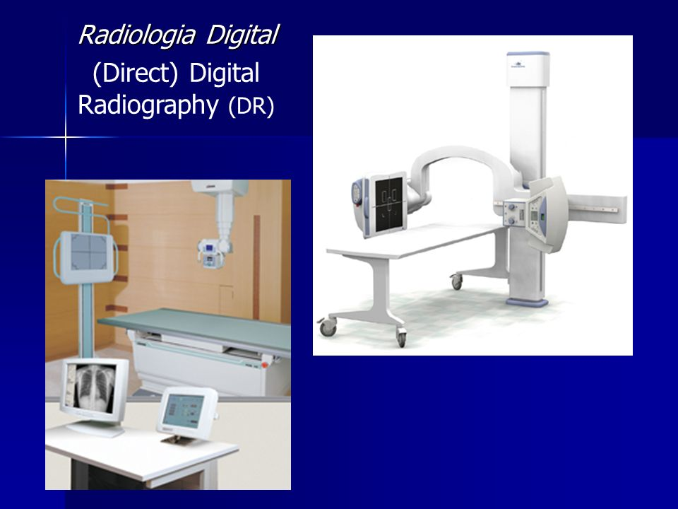 (Direct) Digital Radiography (DR)