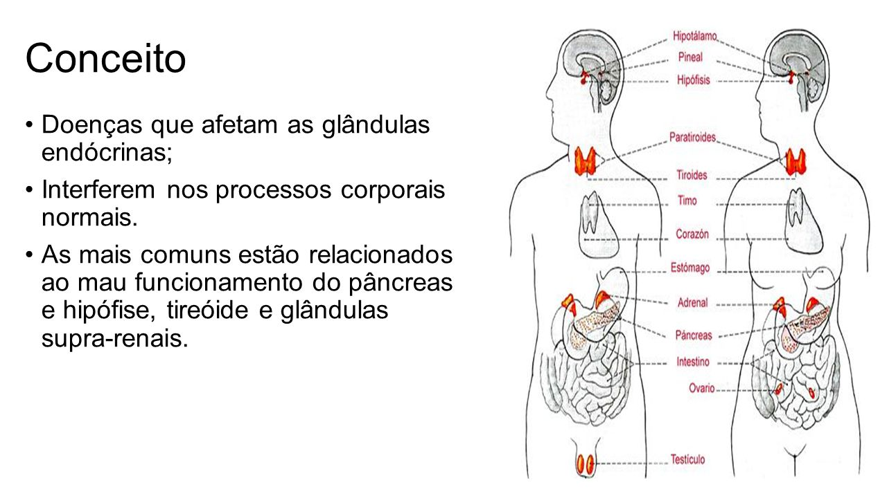 Conceito Doenças que afetam as glândulas endócrinas;