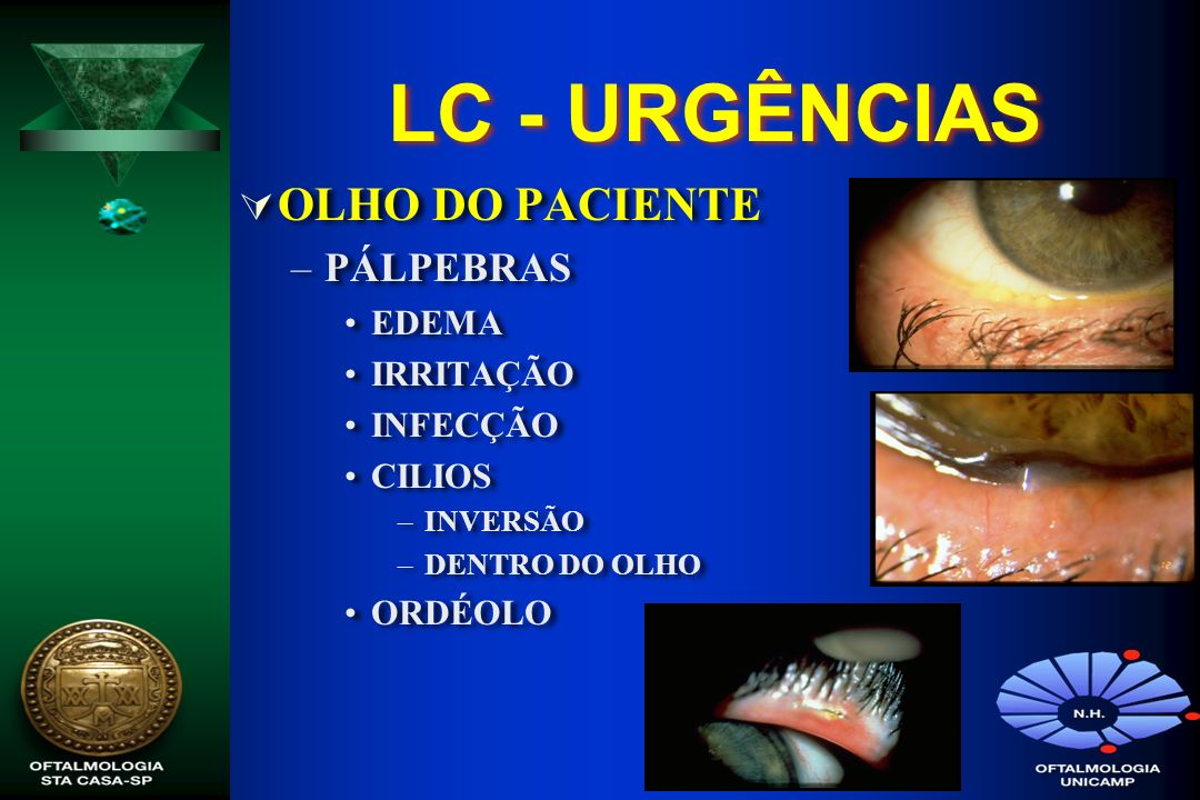 LC - URGÊNCIAS OLHO DO PACIENTE PÁLPEBRAS EDEMA IRRITAÇÃO INFECÇÃO
