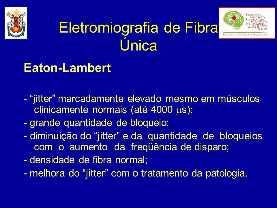 Eletromiografia de Fibra Única