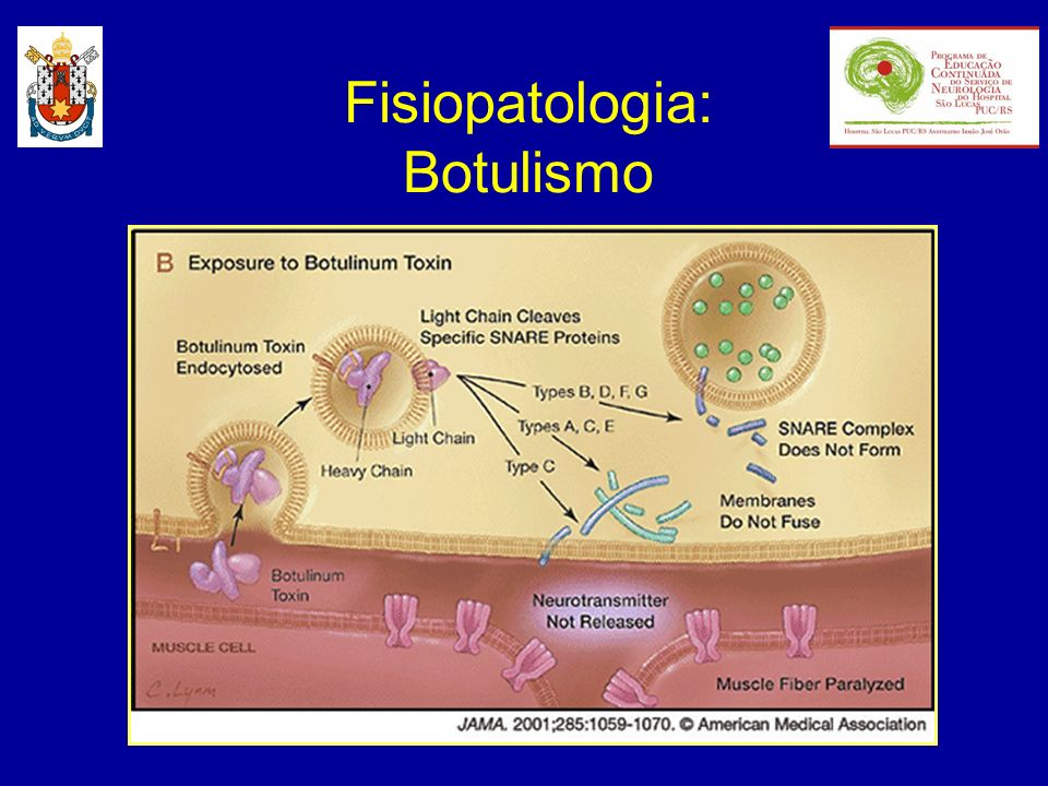 Fisiopatologia: Botulismo