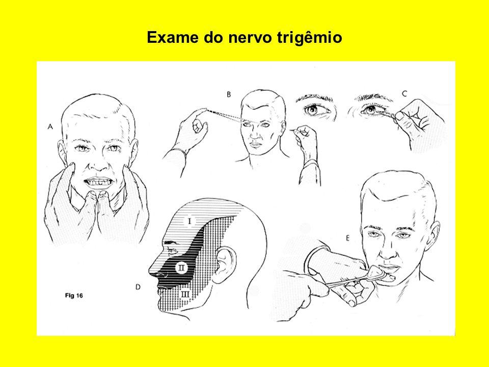 Exame do nervo trigêmio
