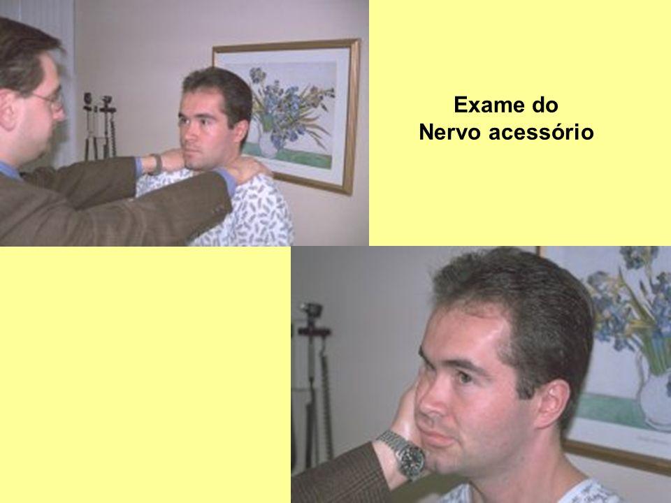 Exame do Nervo acessório