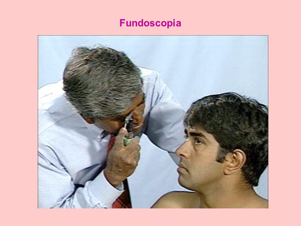 Fundoscopia