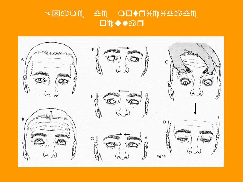 Exame de motricidade ocular