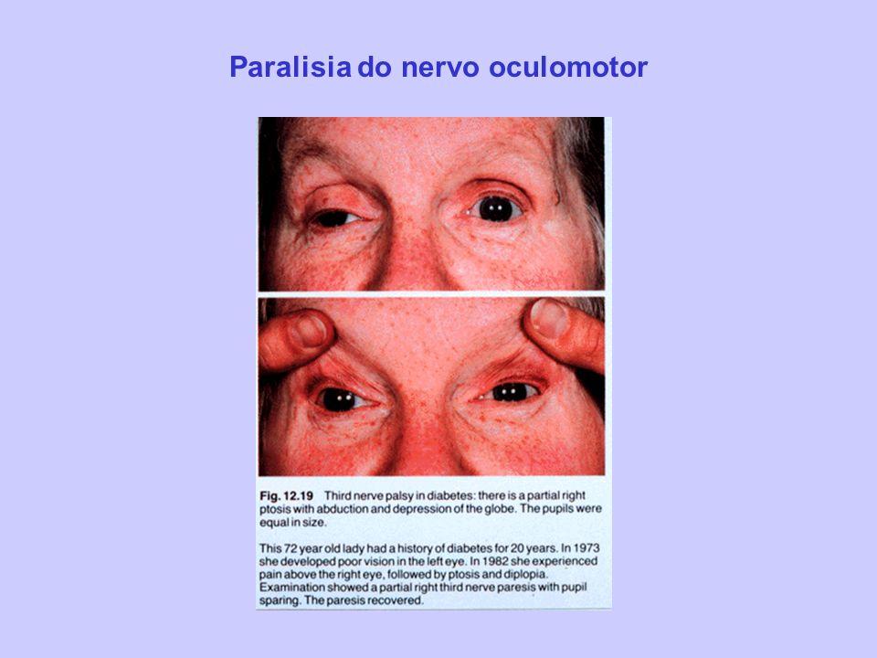 Paralisia do nervo oculomotor