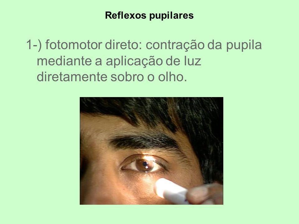 Reflexos pupilares 1-) fotomotor direto: contração da pupila mediante a aplicação de luz diretamente sobro o olho.