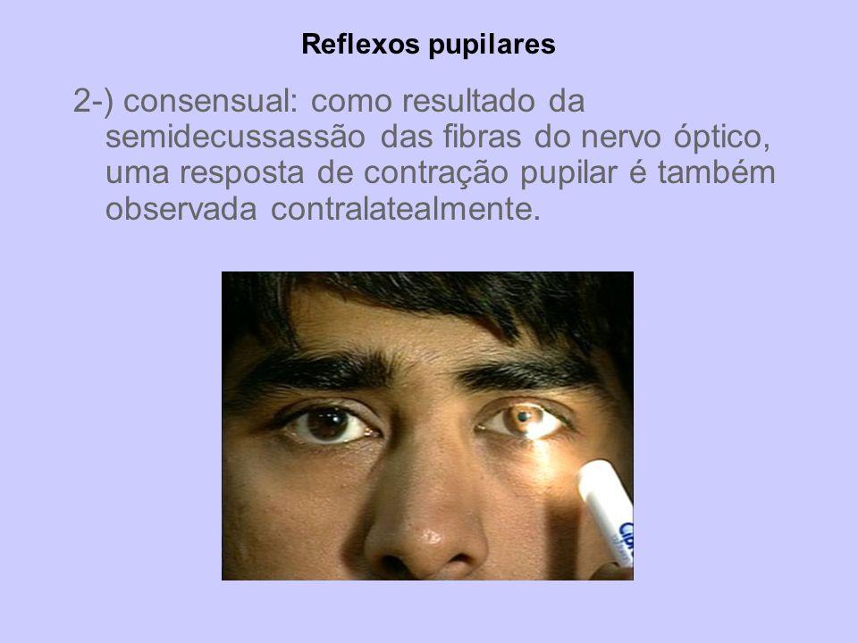 Reflexos pupilares