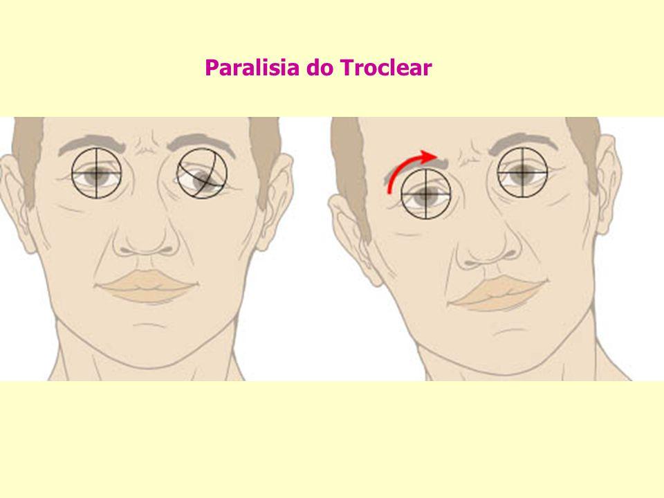 Paralisia do Troclear